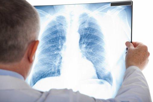 Навіщо здоровим дітям профілактика туберкульозу?